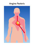 Angina pectoris Stock Images