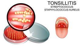 angina streptokok de causatieve agent van de besmetting bacterieel s vector illustratie