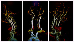 Angio神经的ct检查ica病理学 免版税库存图片