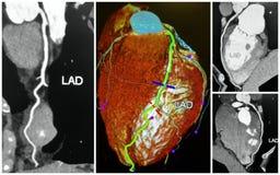 angio 3D Tomographiescan der Herzcollage des jungen Mannes Lizenzfreies Stockbild