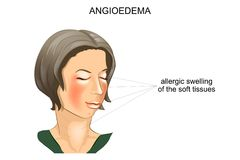 Angioedema. allergic swelling Stock Images