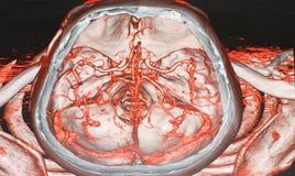 Angiografía CT Fotografía de archivo libre de regalías