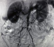 Angiografía de la aorta Foto de archivo libre de regalías
