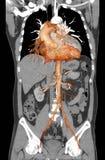 Angiografía del CT de la AORTA ABDOMINAL imagen de archivo
