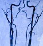 Angiografia a risonanza magnetica carotica Fotografie Stock Libere da Diritti