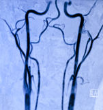 Angiografie de van de halsslagader van de Magnetische Resonantie Royalty-vrije Stock Foto's