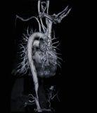 Angiograma de la exploración del Ct (tome la foto de la radiografía de la película) Foto de archivo