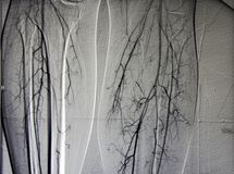 Angiogramma delle imbarcazioni del piedino, entrambe vitello fotografia stock libera da diritti