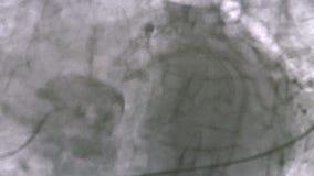 Angiographie coronaire clips vidéos