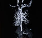 Angiographie de balayage de Ct (prenez la photo du rayon X de film) Photo stock