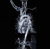 Angiographie de balayage de Ct (prenez la photo du rayon X de film) Photographie stock