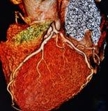 Angiographie de coeur du balayage 3d de Ct colorée photographie stock