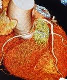 Angiographie de coeur du balayage 3d de Ct colorée photos stock