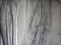 Angiographie des récipients de patte, les deux veau Photographie stock libre de droits