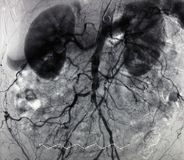 Free Angiography Of Aorta And Branches Royalty Free Stock Photo - 12986975