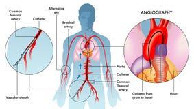Angiography operation illustration stock image