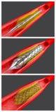 Angioplastia Fotografia de Stock
