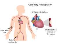 Angioplastia coronaria Fotografia Stock Libera da Diritti