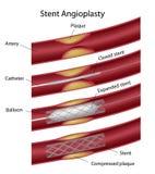 Angioplastia de Stent Fotos de Stock Royalty Free