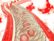 Angioplasty με τη stent τρισδιάστατη απόδοση τοποθέτησης Στοκ Εικόνες
