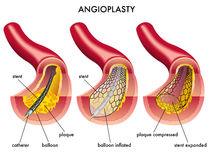 Angioplasty. Medical illustration of an angioplasty operation Stock Images