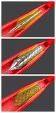 Angioplasty. Balloon angioplasty procedure with placing a stent Stock Photography