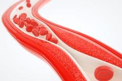 Angioplasty bez stent plasowania 3D renderingu Obrazy Stock