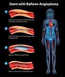 Angioplasty Stent διαδικασία Στοκ εικόνες με δικαίωμα ελεύθερης χρήσης