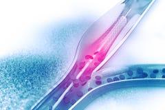 Angioplasty Stent Στοκ Εικόνες