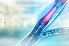 Angioplasty Stent διανυσματική απεικόνιση