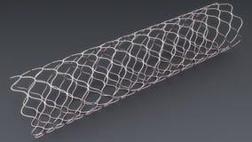 Angioplasty Stent Zdjęcie Royalty Free
