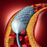 Angioplasty And Stent Concept. As a heart disease treatment symbol with an implant in an artery that has cholesterol plaque blockage being opened for increased Stock Photography