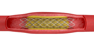 Angioplasty with stent placement. Angioplasty with stent placement, 3d illustration Stock Photography