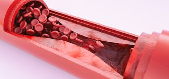 Angioplasty without stent placement- 3D rendering. Angioplasty without stent placement --3D rendering Stock Photo