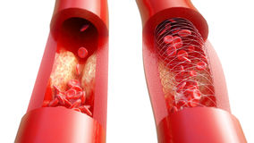 Angioplasty with stent placement- 3D rendering Stock Photography