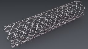 Angioplasty Stent Royalty Free Stock Photo