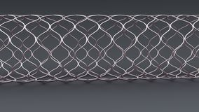 Angioplasty Stent Royalty Free Stock Images