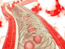 Angioplasty z stent plasowania 3D renderingiem Obrazy Stock