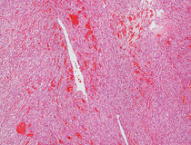 Angiosarcoma micrograph. A photomicrograph of a malignant tumor of blood vessels Royalty Free Stock Photos
