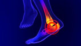 Animação de esqueleto do raio X da dor do tornozelo ilustração do vetor