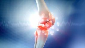 Animación del dolor de la rodilla ilustración del vector