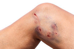 Animal bite wound leg Stock Photos