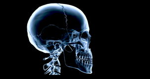 An animated X Ray of a human skull talking, multicoloured version stock video