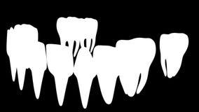 Animation dental brackets stock video