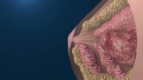 Animazione di crescita delle cellule di cancro al seno illustrazione vettoriale