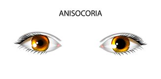 Anisocoria. pupils of different sizes Royalty Free Stock Image