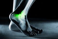Ankel och ben för mänsklig fot i röntgenstråle, på grå bakgrund arkivbilder