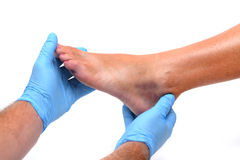 Ankle Bruise Royalty Free Stock Photo