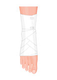 An Ankle with Elastic bandage Stock Photo