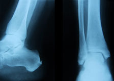 Ankle joint Royalty Free Stock Photo